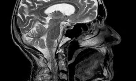 Ligação entre doenças gengivais e o declínio cognitivo na doença de Alzheimer