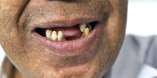 Brasil: perda de dentes é também questão social