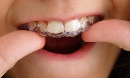 Invisalign First, alinhadores para kids
