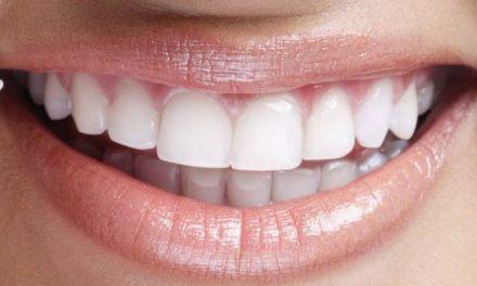 Tratamento inédito remove lentes de contato dental