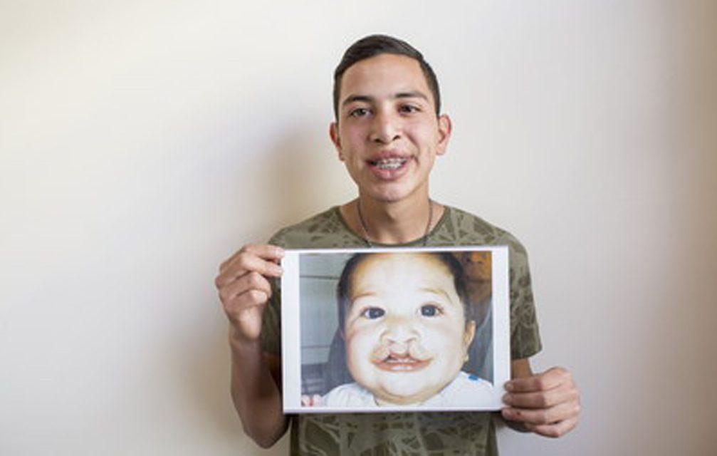 FDI: fenda lábio-palatina, a diferença do nascimento mais comum