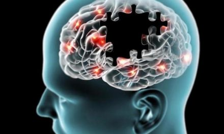 Periodontite pode levar à doença de Alzheimer