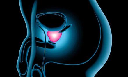 Atividade física pode diminuir chance de câncer de próstata
