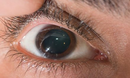 Campanha mundial: coçar os olhos prejudica a visão e pode causar covid-19