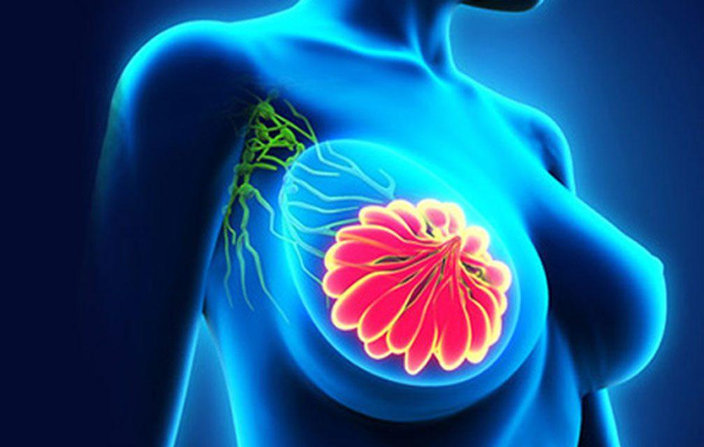 Prevenção de câncer de mama e a indústria de alta tecnologia