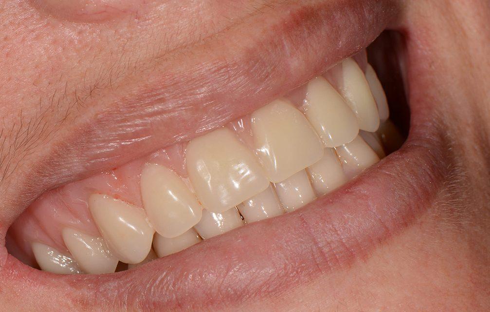 S.I.N. Implant System oferece a dentistas curso grátis de especialização em carga imediata, com direito a cirurgia ao vivo