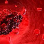 Coagulação sanguínea pode ser sintoma do Covid-19