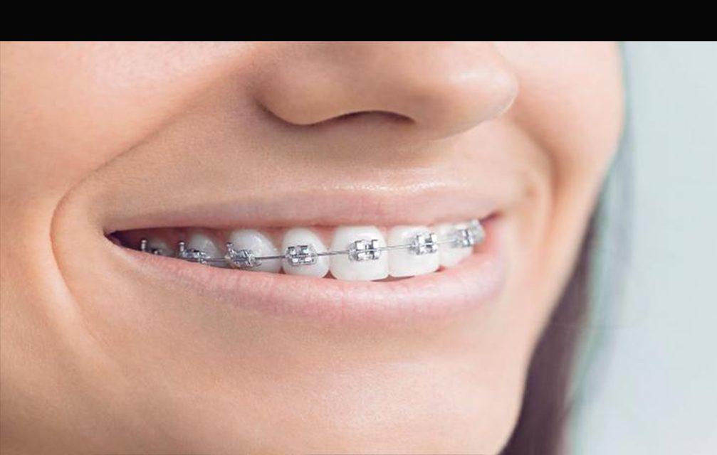 Ortodontia: muito além de colocar os dentes no lugar