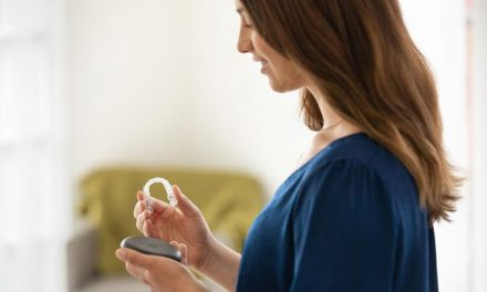 Alinhadores e a Importância da higiene para a saúde bucal